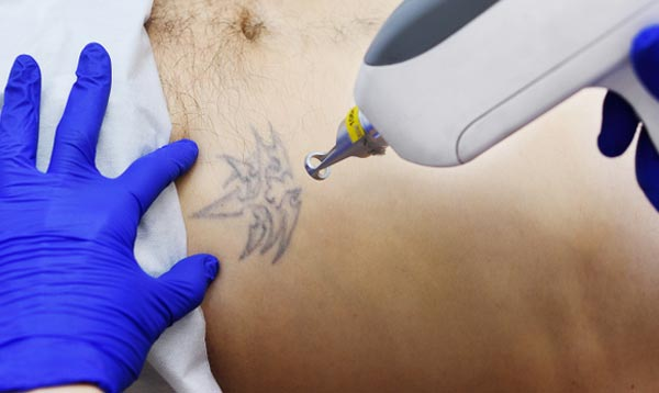 methods of tattoo removal