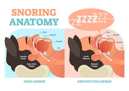 If You Snore, You Might Have a Potentially Life-threatening Disorder