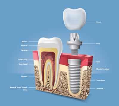 Professional Dental Health Advice